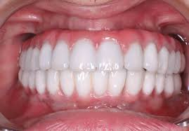all on dental implants houston price