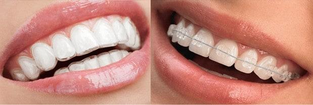 orthodontics houston tx
