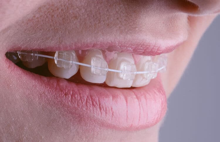 Adult Braces in Richmond, Texas