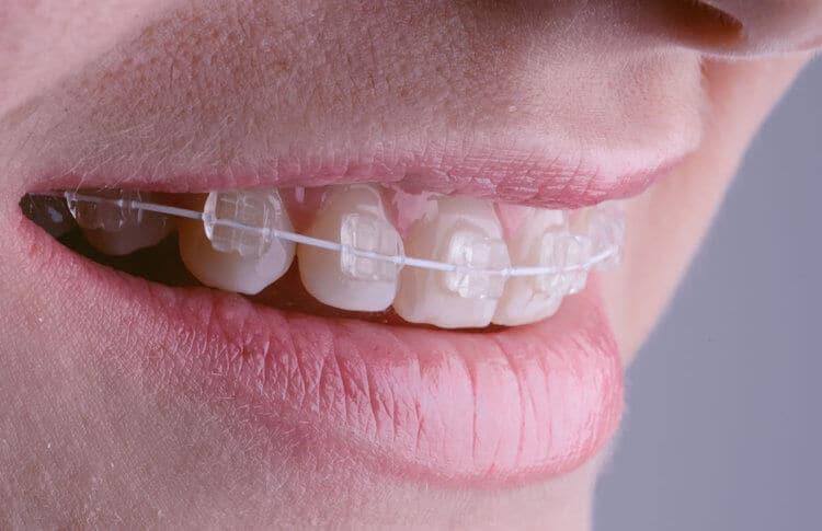 Adult Braces | Best Dental in Houston, TX