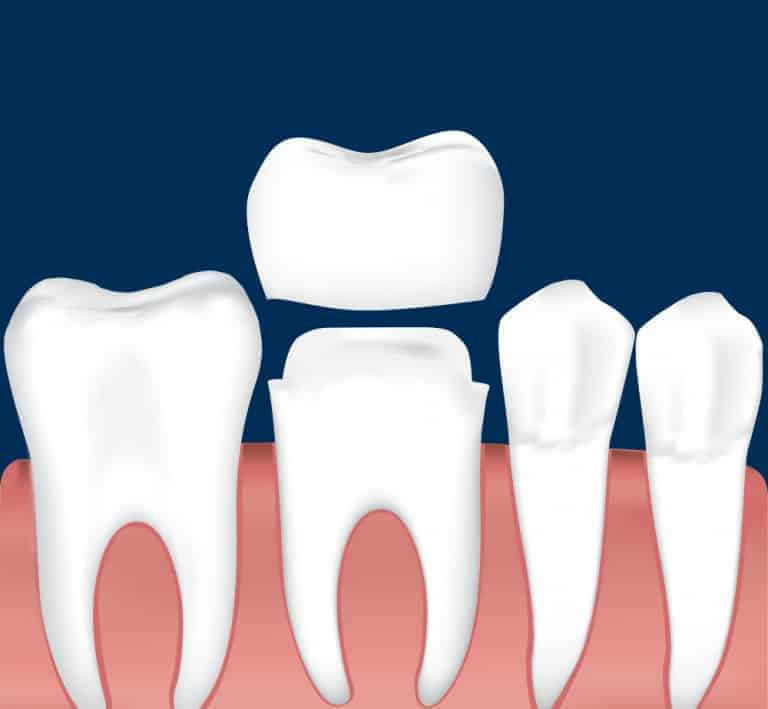 dental crowns cost houston