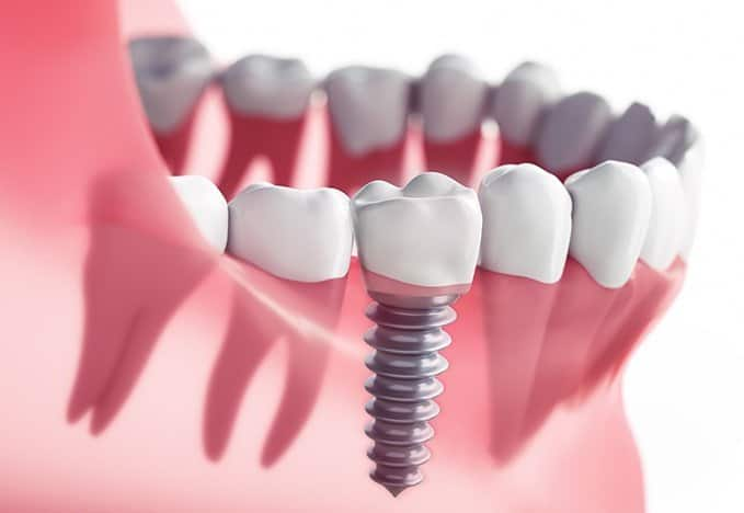 root canal vs implant | Best Dental