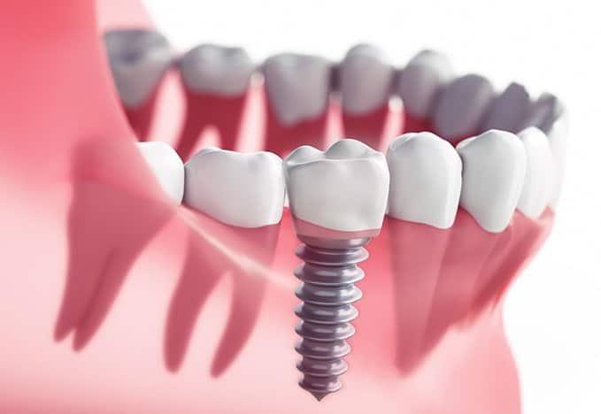 Affordable Dental Implants Sugar Land Tx
