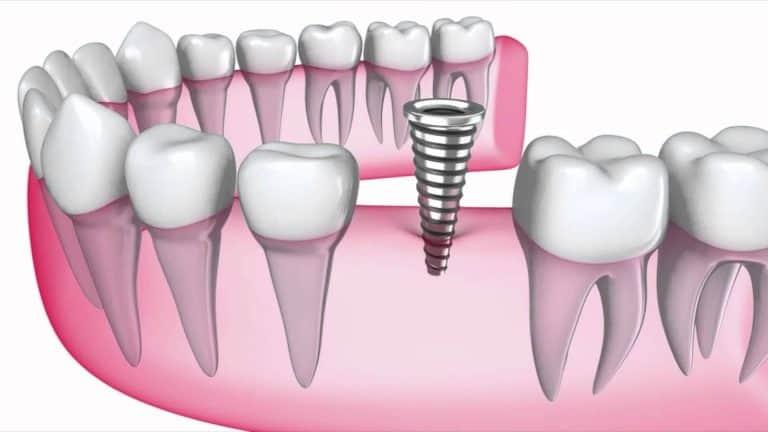 Dental implant average cost Sugar Land, TX