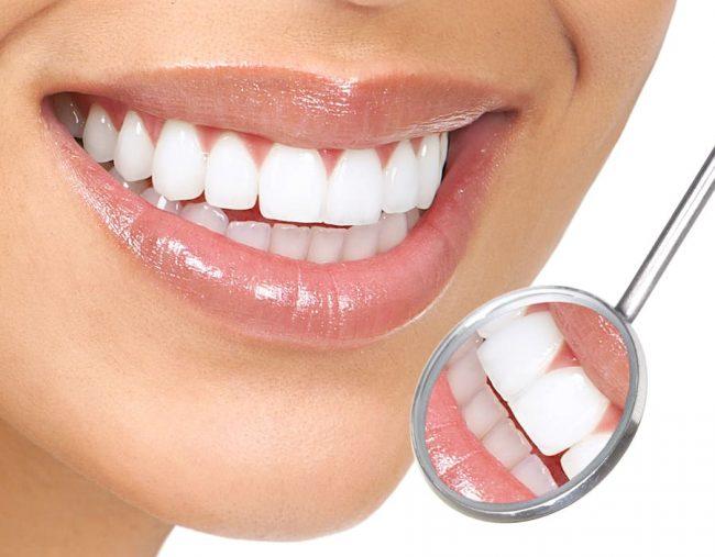 Veneers After Braces? | Best Dental in Houston, Texas