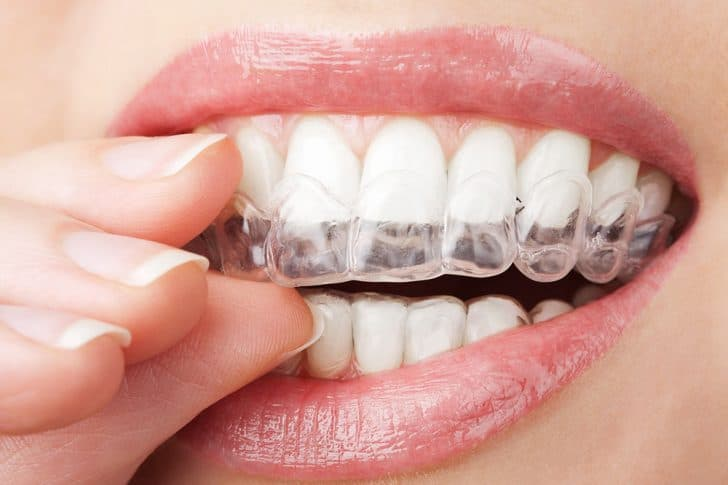 Invisalign cost houston