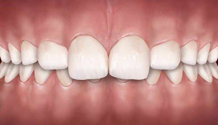 Dental Veneers Overbite
