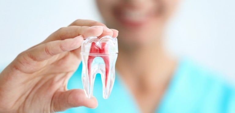 root canal spring tx