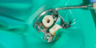 Alternative to root canals
