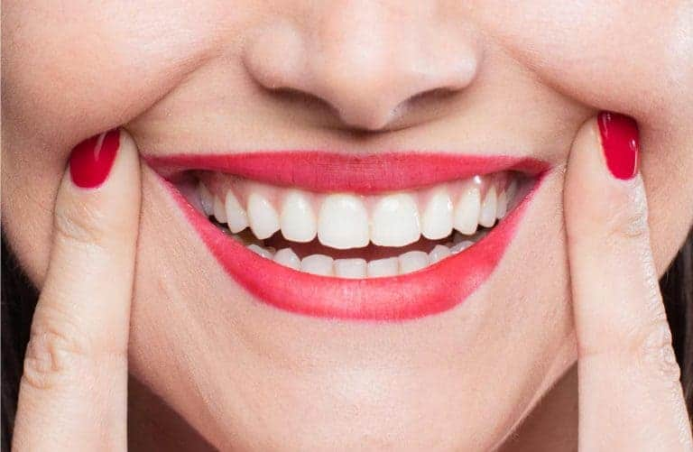 Full Mouth Reconstruction Finance Options
