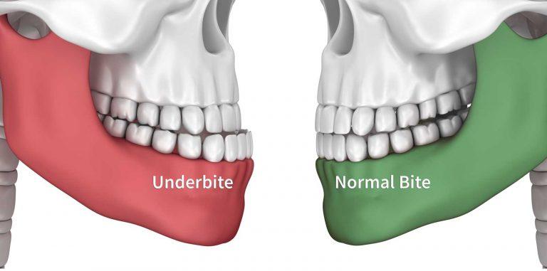 cosmetic dentistry underbite houston