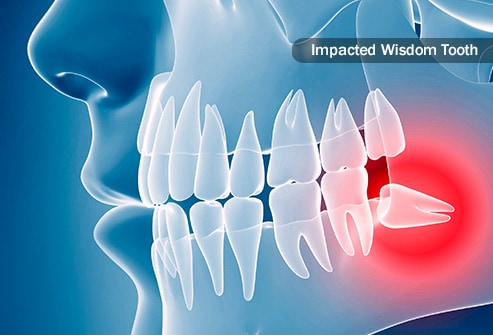 wisdom teeth heal after removal