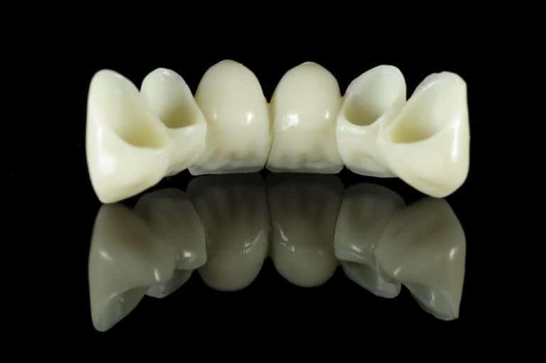 dental bridge cost houston