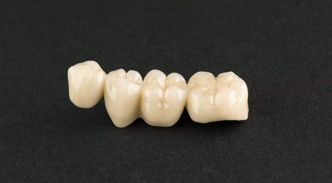 Affordable Dental Bridges in Houston, TX | Dental Bridge Cost | Best Dental