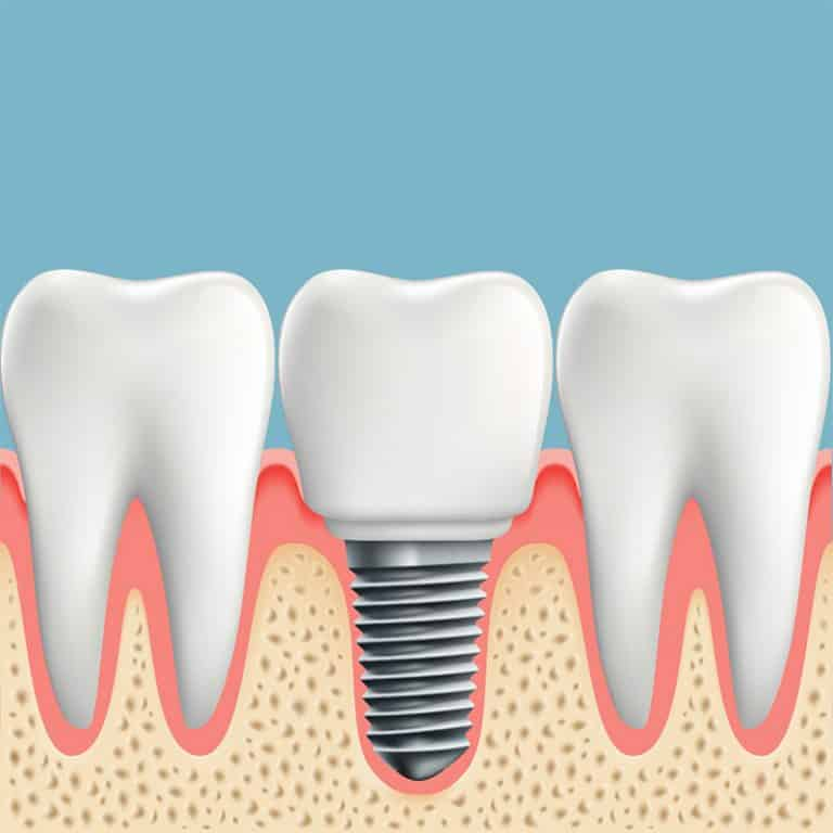 dental implants pasadena tx