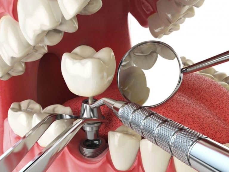 dental implants katy tx
