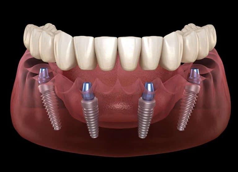 All-On-4 Dental Implants - Dental Implants VS Real Teeth