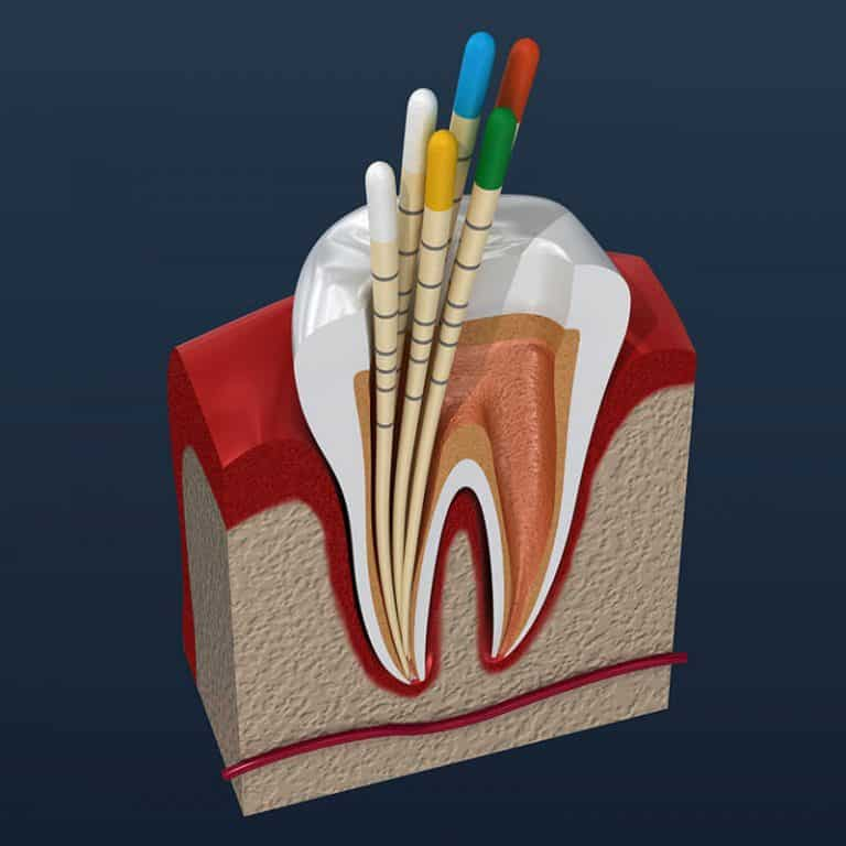 emergency root canal houston
