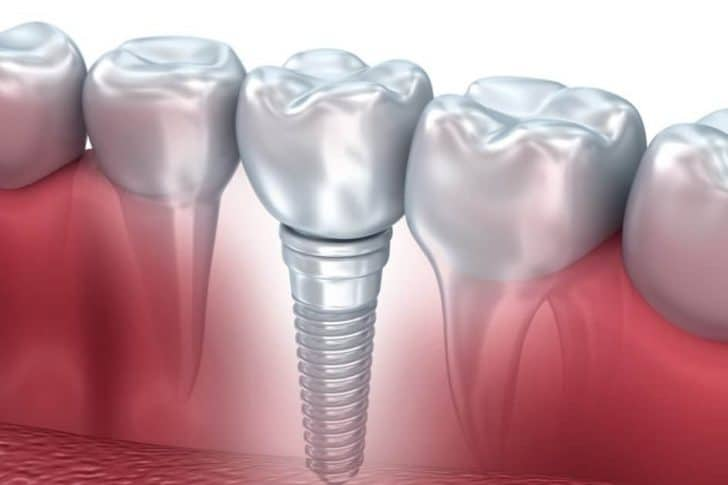 dental implant restoration | Best Dental in Houston, TX