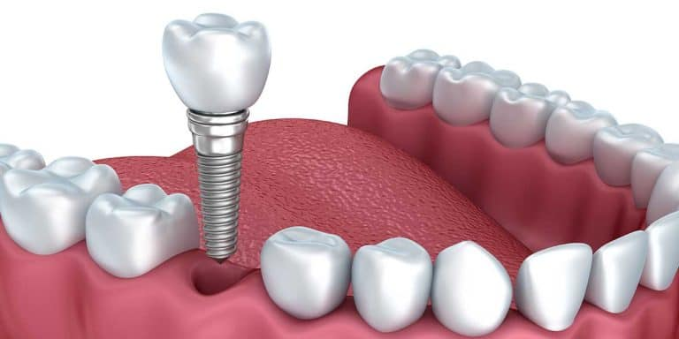 Dental Implants or Root Canal?