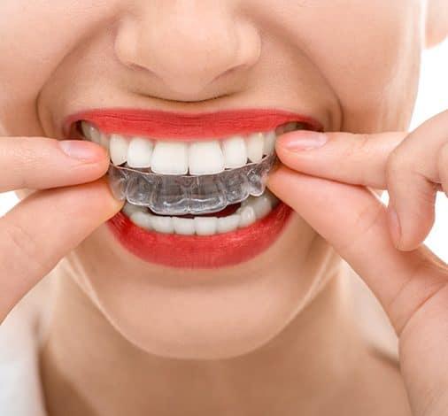 SureSmile | Best Dental in Houston, TX
