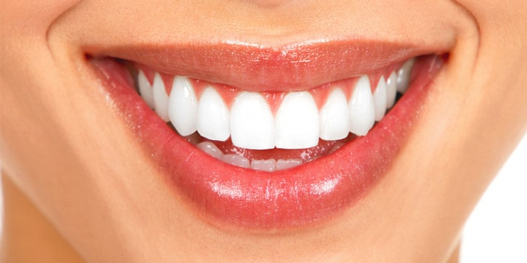 teeth whitening houston