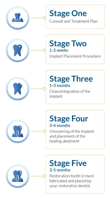 Dental Implant Treatment Timeline
