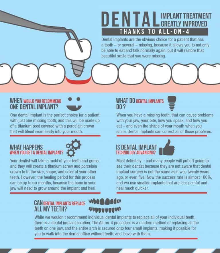 Dental Implant Specialist Houston