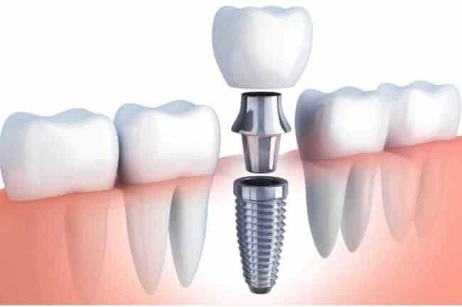 Stages Of Dental Implants | Best Dental in Houston, Texas