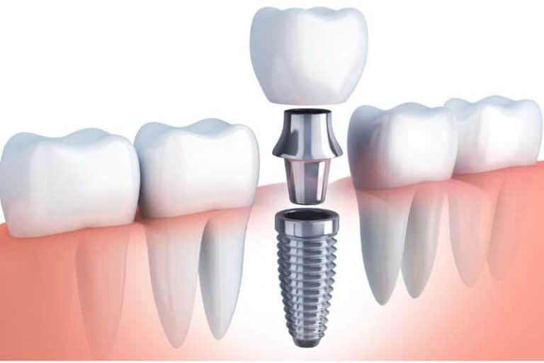 Dental Implant Specials