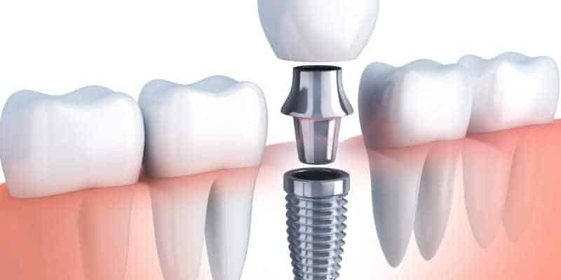 Stages Of Dental Implants | Best Dental in Houston, Texas