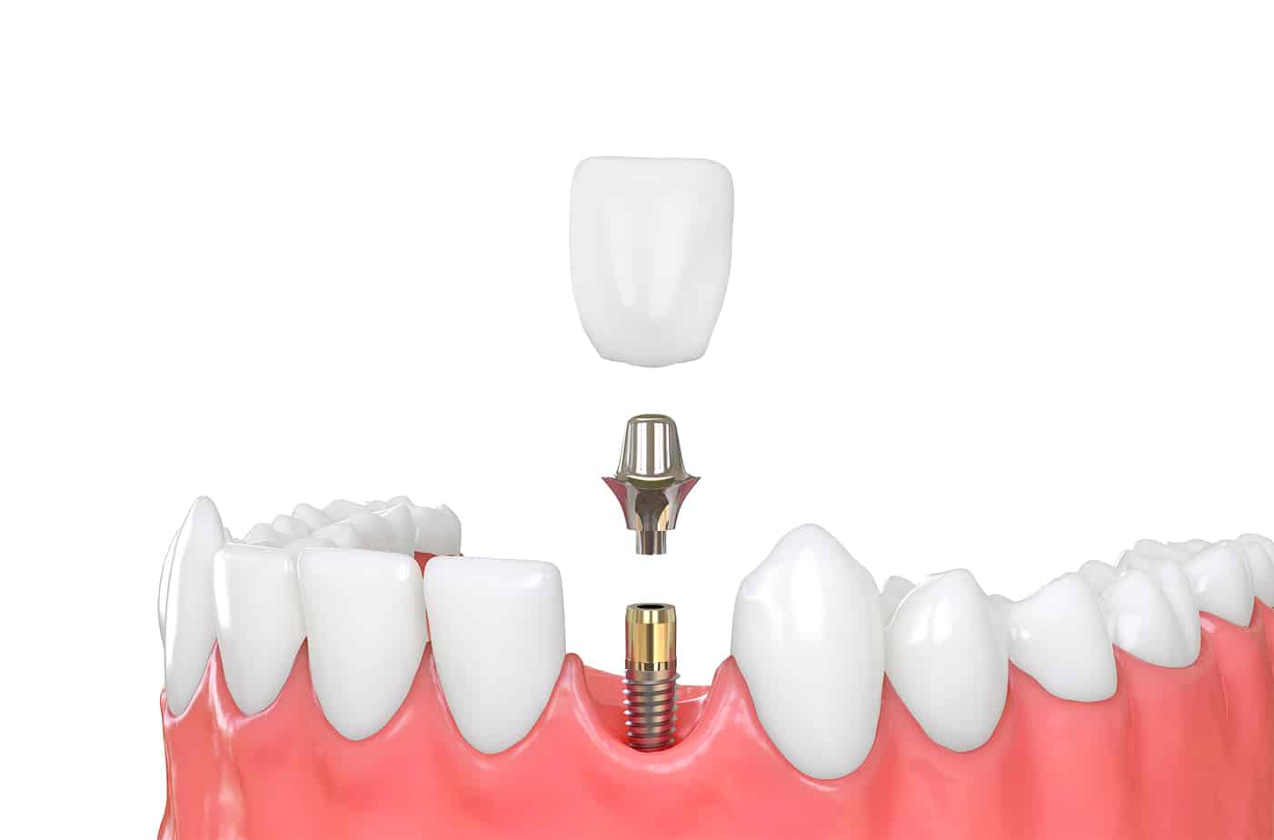 Cost Of Dental Implants In Cypress Tx Affordable Dental