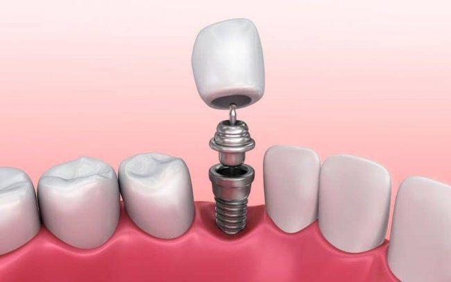 Are Dental Implants Safe? Dental Implant Health Risks - Best Dental