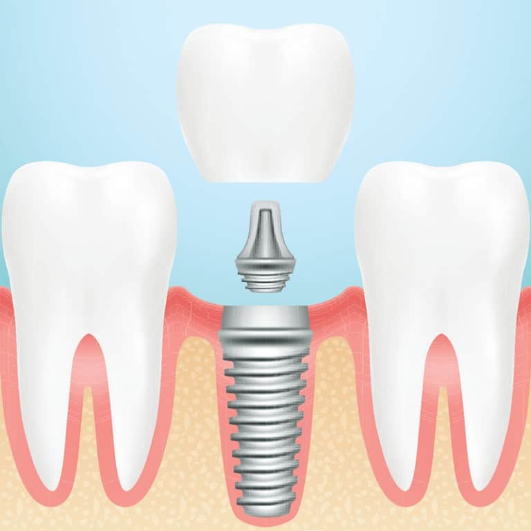 tooth replacement options in Houston, TX