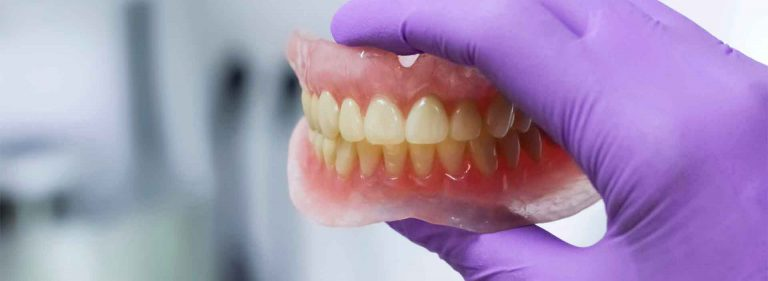alveoloplasty needed for dentures