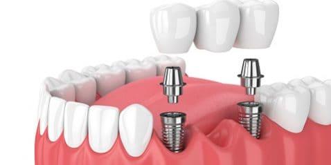 Dental Implant Bridge - Dental Implants VS Real Teeth