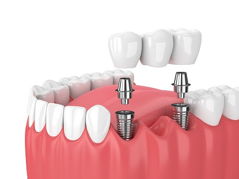 Full Mouth Dental Implant Costs