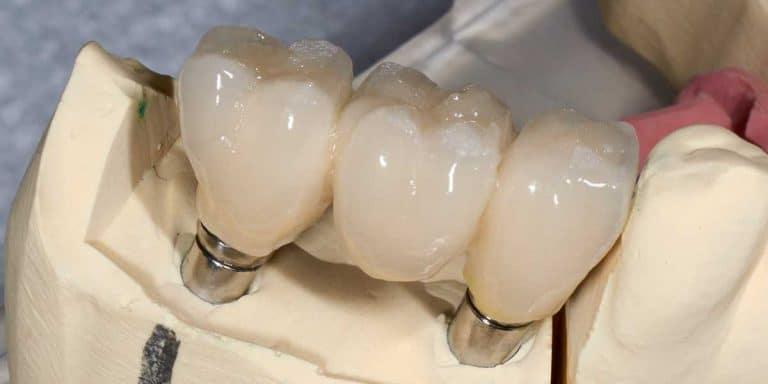 implant supported bridges houston