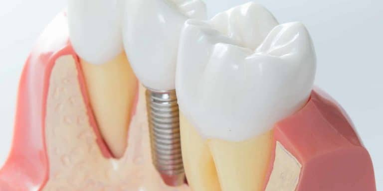 dental implants the woodlands, tx