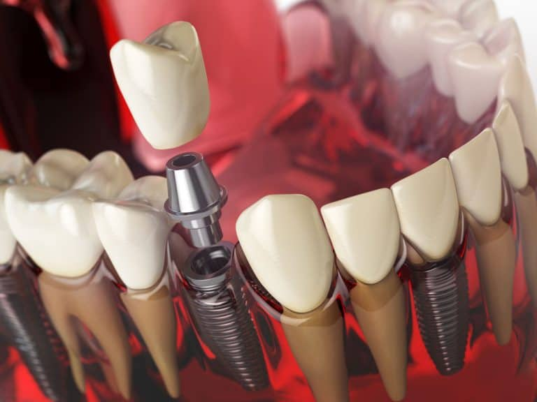dental implants | Best Dental Richmond, TX