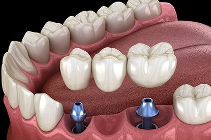 Dental Implant Specials | Best Dental in Houston, TX