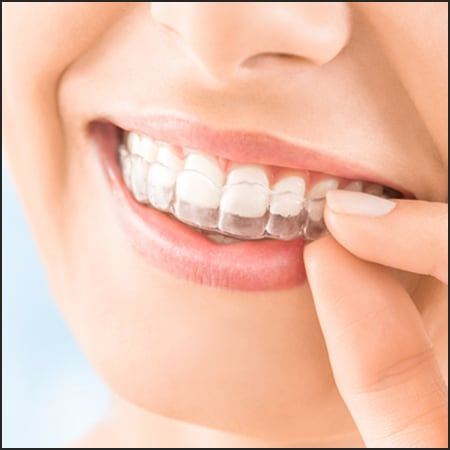 Invisalign cost | Best Dental in Houston, Tx