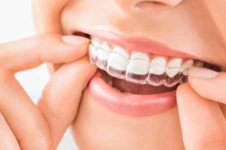 Invisible Braces Cost | Best Dental in Houston, TX
