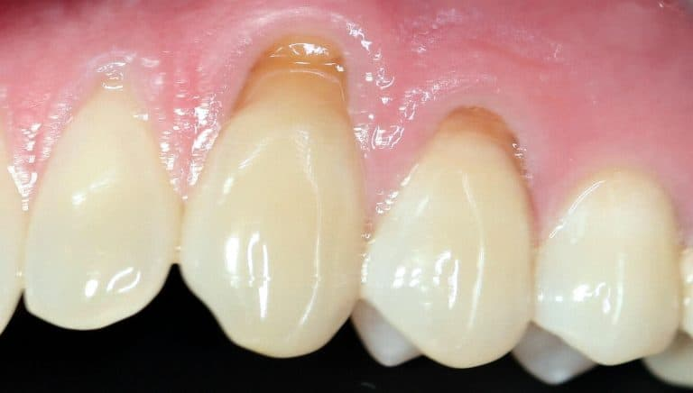 teeth abfraction