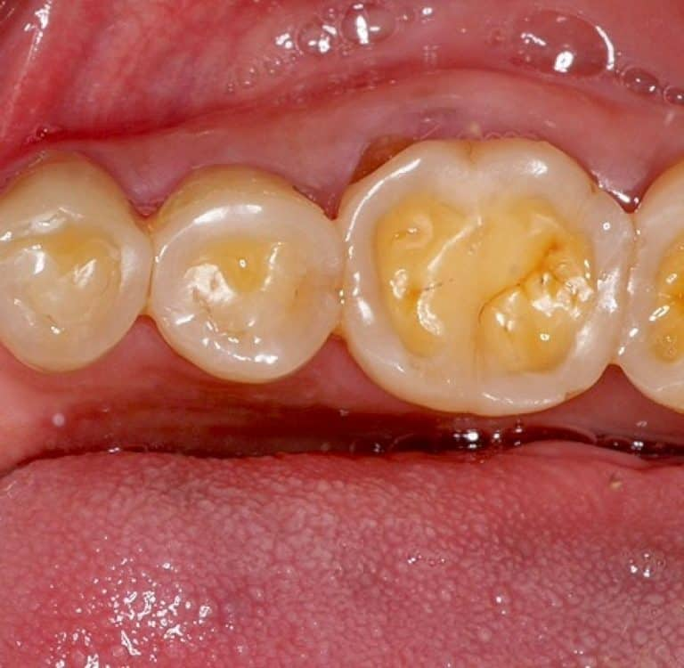 teeth erosion