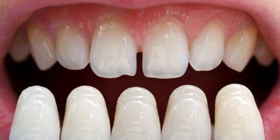 How to make teeth look bigger?   Best Dental in Houston, TX