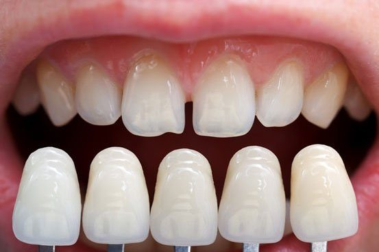 How to make teeth look bigger? | Best Dental in Houston, TX