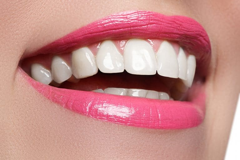 No Prep Veneers | Best Dental in Houston, TX