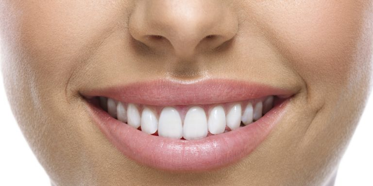 Are Dental Veneers Worth The Money? | Best Dental in Houston, TX