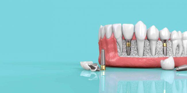 Dental Implants Specials